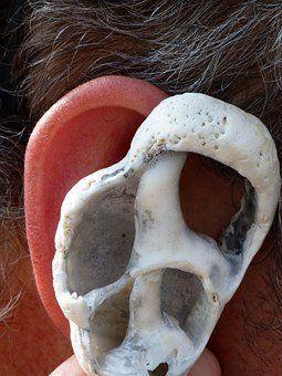 Tinnitus und Kiefergelenk